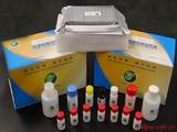 人SLA检测Elisa试剂盒
