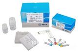 人转铁蛋白受体(TFR)酶联免疫分析(ELISA)试剂盒