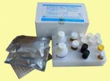 人白介素15(IL-15)ELISA试剂盒  规格