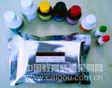 北京人乙型肝炎病毒前S2抗体(HBV preS2Ab)ELISA Kit