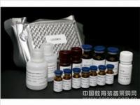 人白介素5(IL-5)ELISA试剂盒