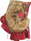 女性盆腔正中矢装切塑化标本
