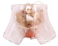 高级透明刮宫模型,妇科检查模型,教学模型