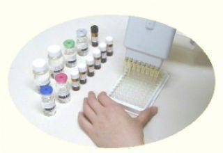 大鼠抗凝血酶Ⅲ抗体(AT-Ⅲ)试剂盒