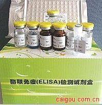 可溶性肿瘤坏死因子受体(sTNF-R 60kDa)ELISA试剂盒