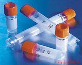 兔抗人永离有丝分裂基因a(NIMA)抗体