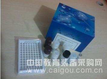 人肺表面活性物质相关蛋白B(SP-B)酶联免疫试剂盒
