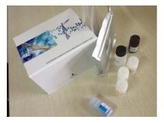 ET-1试剂盒,人内皮素ELISA试剂盒价格
