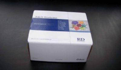 人天门冬氨酸氨基转移酶(AST)ELISA试剂盒