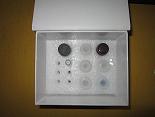 脱氧胶原吡啶交联ELISA试剂盒厂家代测,进口人(DPD)ELISA Kit说明书