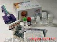 人抗滋养膜细胞抗体ELISA试剂盒