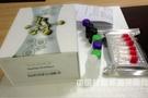 """天津检验检疫局""""松材线虫检测试剂盒""""获国家专利"""