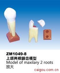 上颌两根龋齿模型