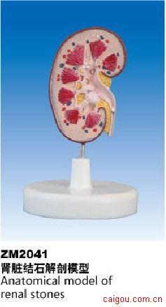 肾脏结石模型