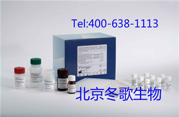 Human同型半胱氨酸,人(Hcy)elisa试剂盒